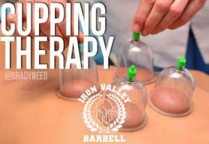 Cupping Therapy – Brady Need